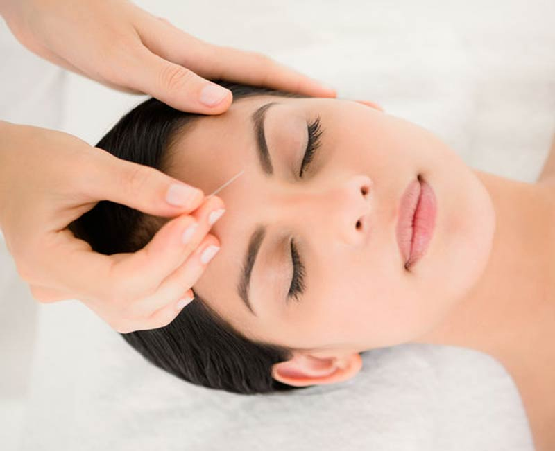 best facial acupuncture in london