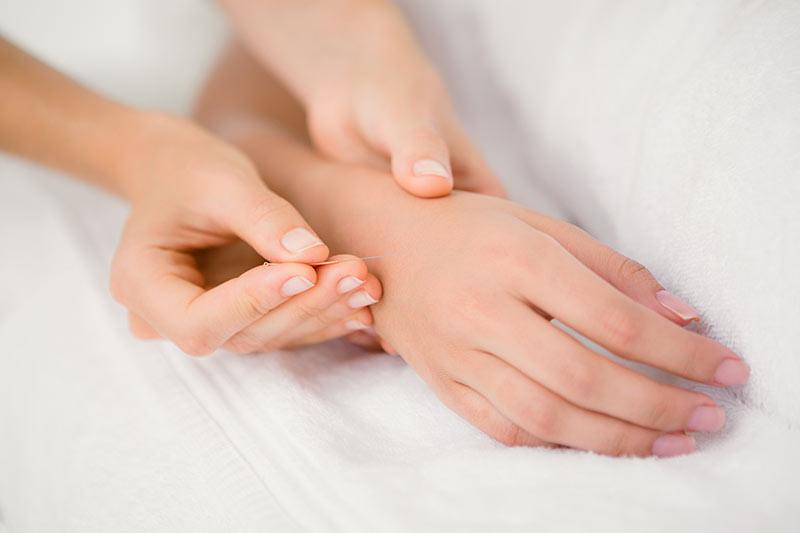 london acupuncture treatments
